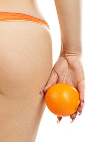 Vad orsakar celluliter?