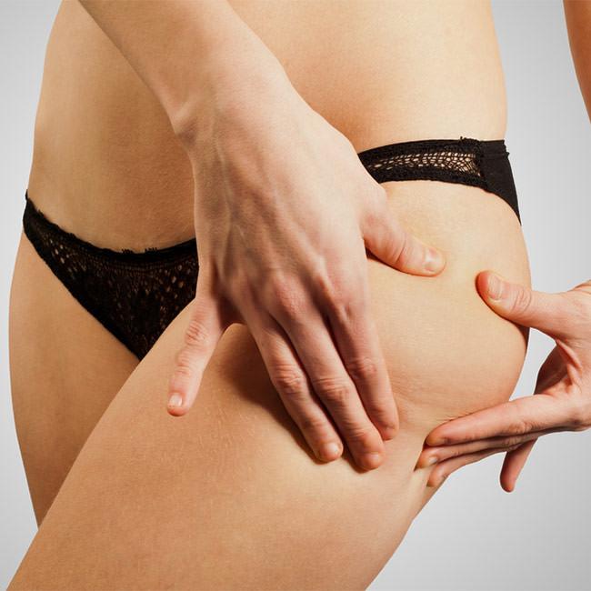 Hur kan celluliter påverka din hälsa?